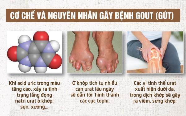 Nguyên nhân của bệnh Gout