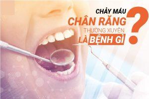 Chay Mau Chan Rang La Banh Gi