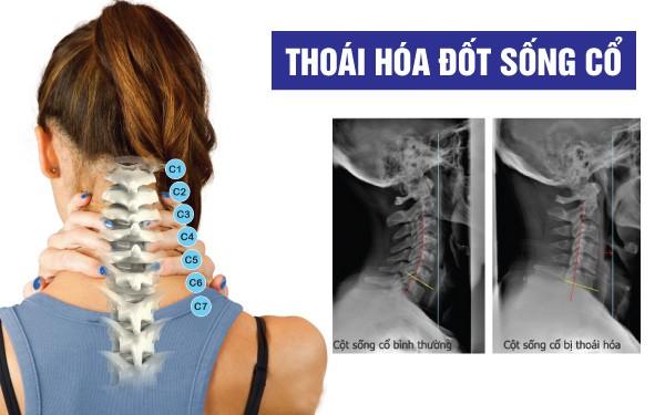 Thoaihoadotsongco