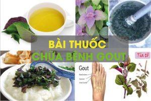 Bài thuốc đông y chữa bệnh gout
