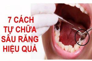 bài thuốc đông y chữa sâu răng